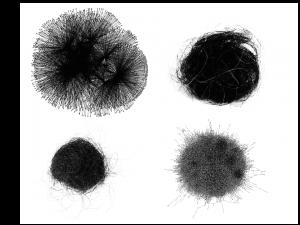 Hairballs. [Sources 1 2 3 4]